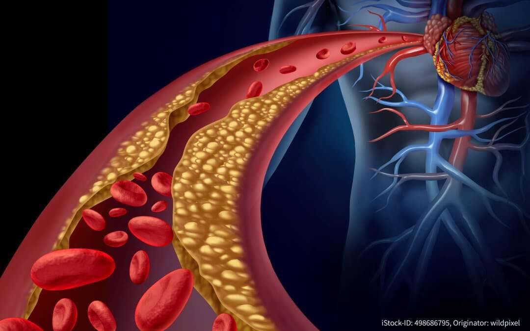 Polypharma marks World Cholesterol Day